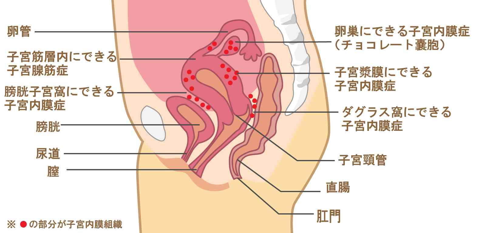 子宮内膜症のできやすい場所