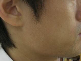 頬から顎にかけてのアトピー2か月半後