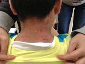 顔から頸のアトピー性皮膚炎来局時