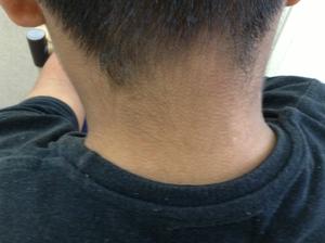 顔から頸のアトピー4か月後