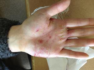 手のアトピー・湿疹来局時2