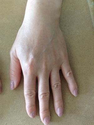 手のアトピー・湿疹6か月後
