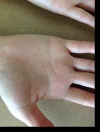 手のアトピー・湿疹6か月後3