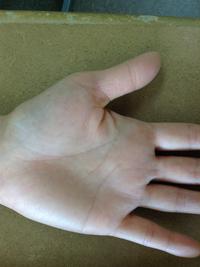 手のアトピー・湿疹6か月後2