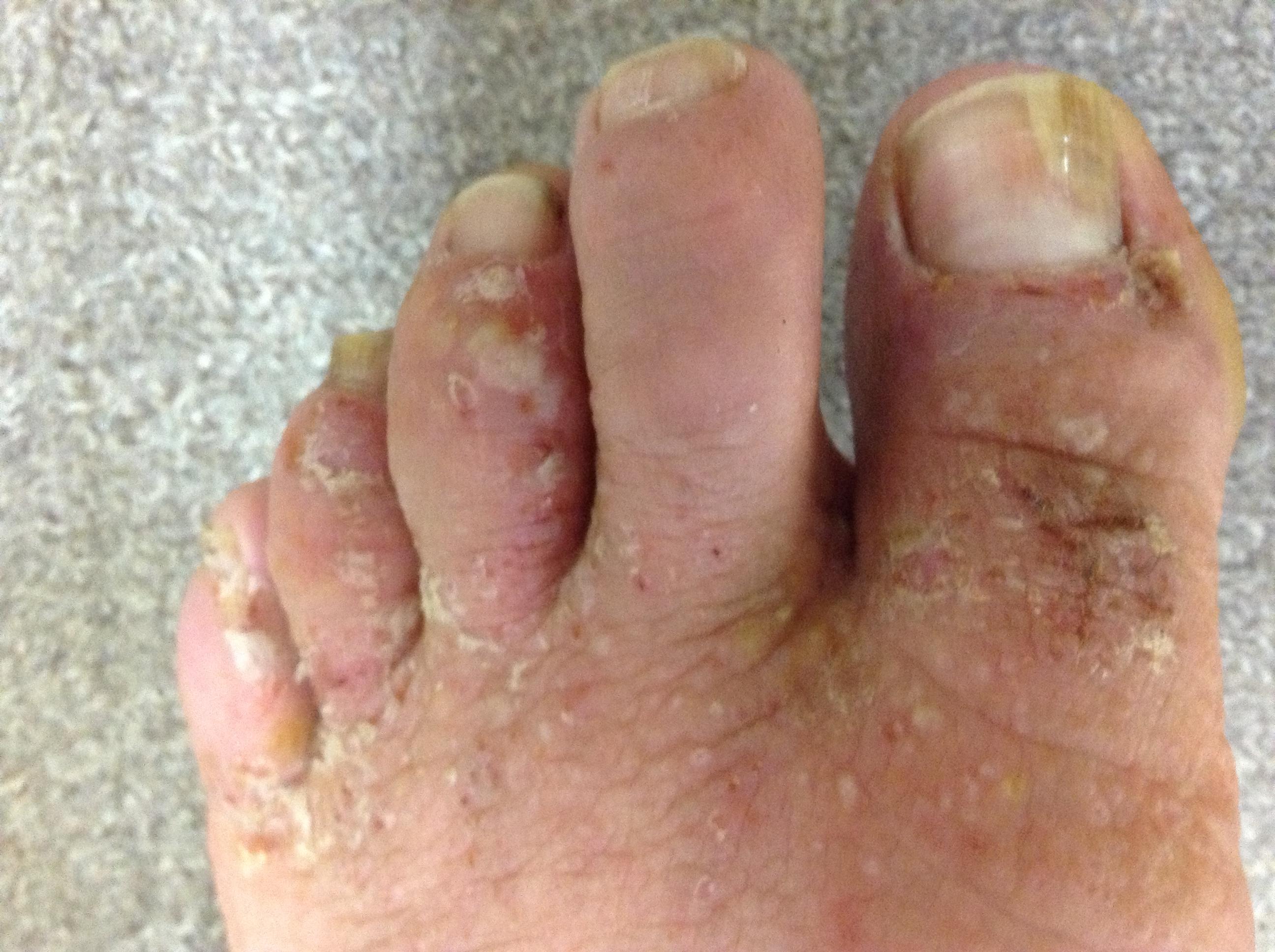 左足の湿疹来局時