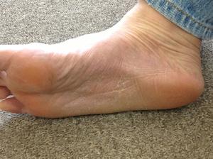 掌蹠膿疱症右1年9か月後