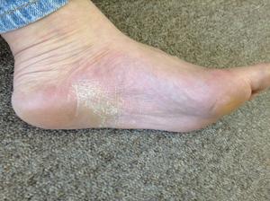 掌蹠膿疱症左1年9か月後