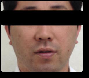 顔の赤みと乾燥アトピー3か月後
