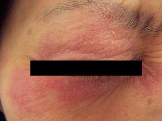瞼中心のアトピー性皮膚炎来局時