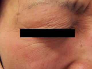 瞼留鍼のアトピー性皮膚炎7か月後