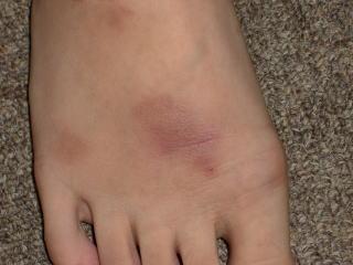 足のアトピー性皮膚炎4か月後