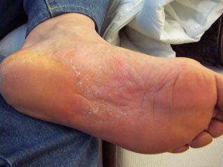 掌蹠膿疱症20か月後