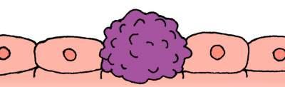腫瘍イメージ