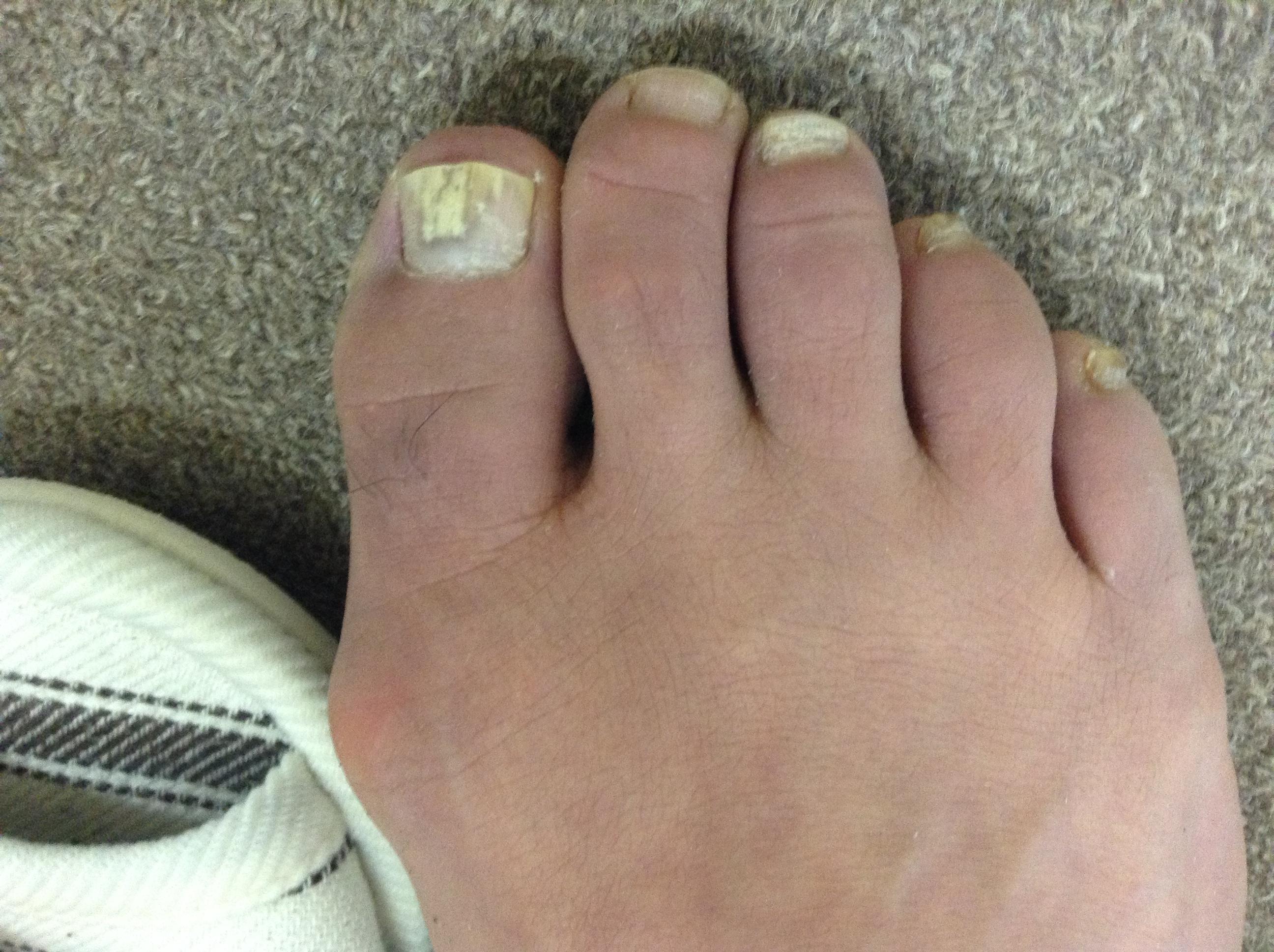 右足の湿疹4か月後