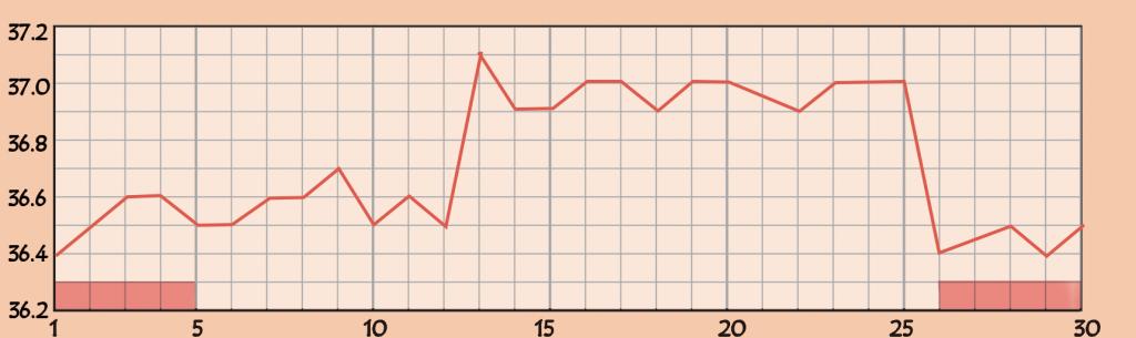 甲状腺機能亢進症(バセドウ病)の基礎体温のグラフ