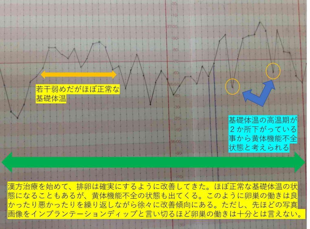 インプランテーションディップ?と見えてしまう基礎体温のグラフ