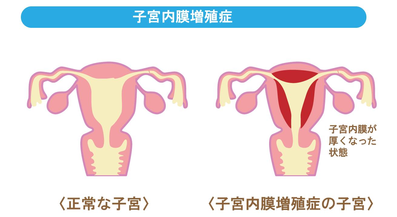 子宮内膜増殖症の画像