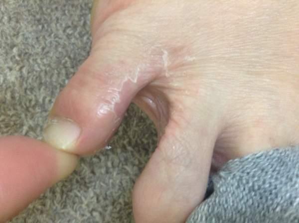 水虫が原因の湿疹(2週間後)