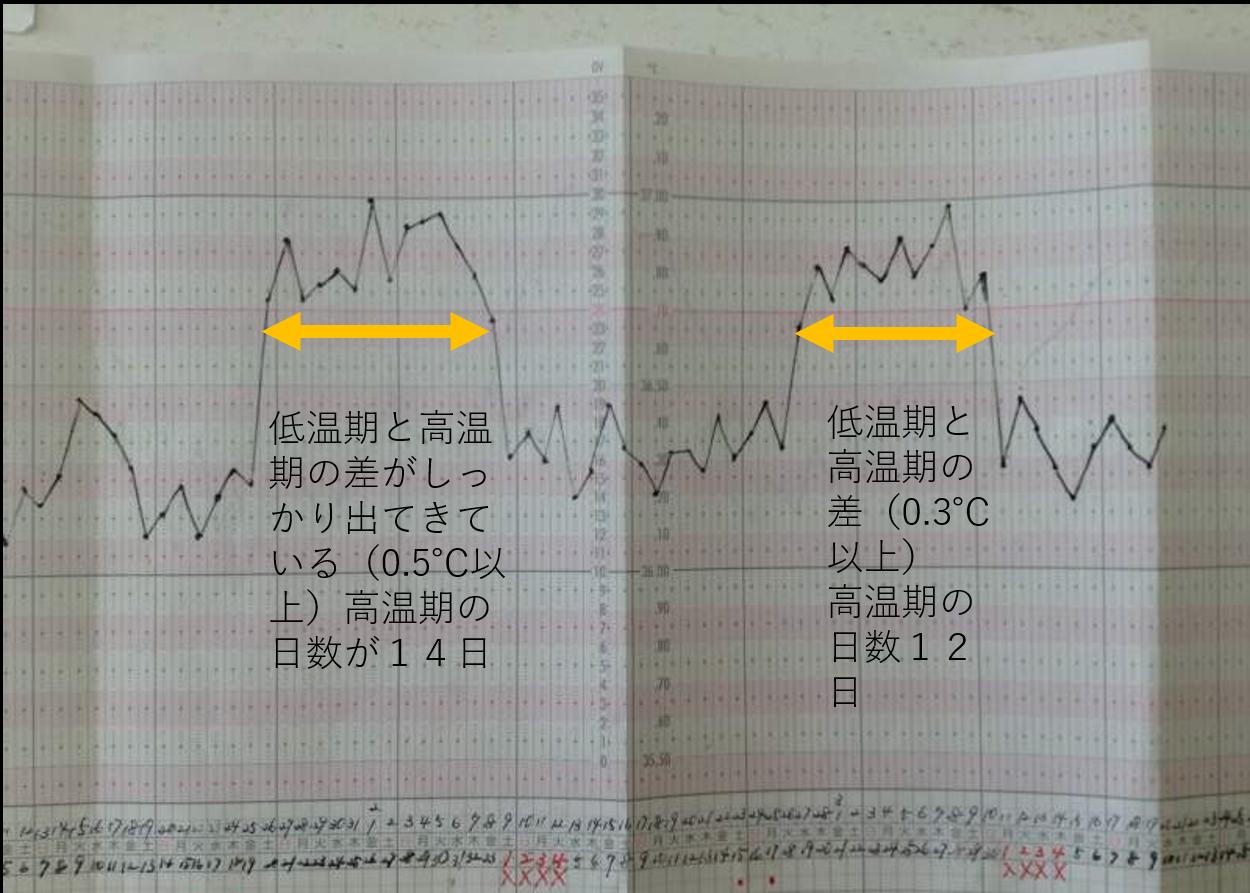 基礎体温合っている漢方薬を煎じ薬に変更しいた後の基礎体温