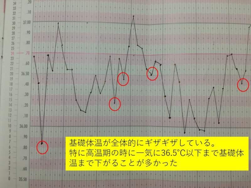 治療前の基礎体温