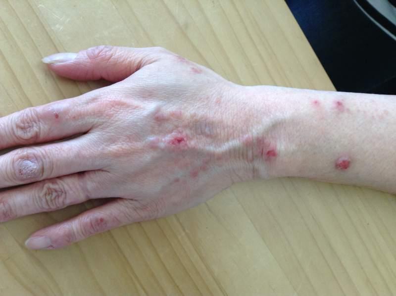 痒疹(漢方薬服用前)