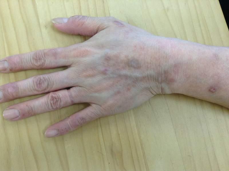 漢方薬1か月半服用後の痒疹