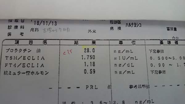 高プロラクチン血症治療前