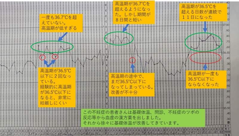二人目不妊患者さん基礎体温改善