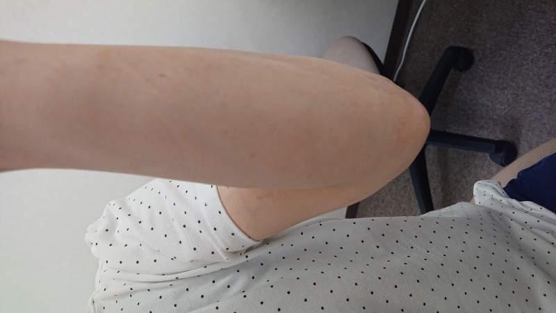 漢方治療後の汗の皮膚病